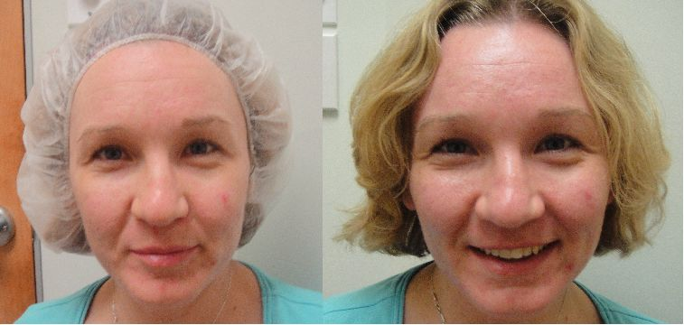 Crystal High Quality Facial Acne Exfoliator Aluminum Oxide